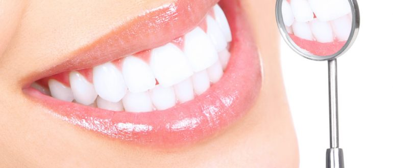 улыбка, белые зубы, голливудская улыбка, белоснежная улыбка